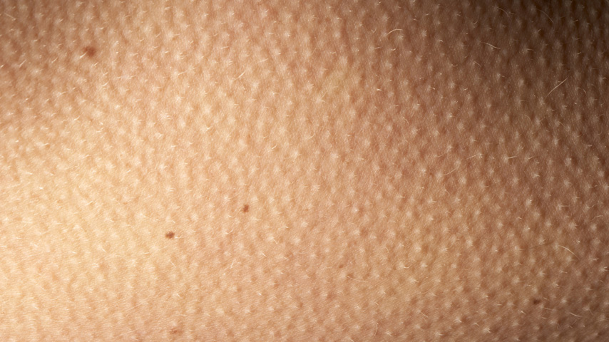 What Are Goosebumps?